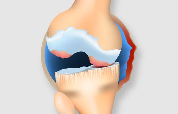 末期のひざ関節
