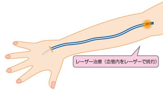 レーザー治療(血管内をレーザーで焼灼)