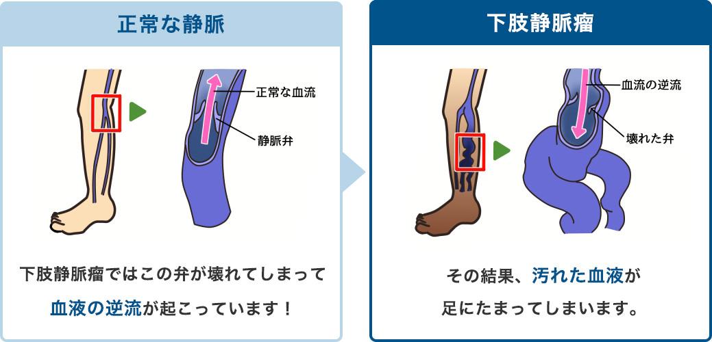 静脈の逆流防止弁が壊れると汚れた血液が足に溜まってしまいます。