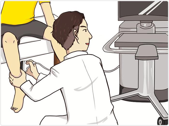下肢静脈瘤の超音波エコー検査