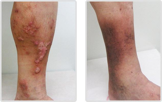 下肢静脈瘤の合併症