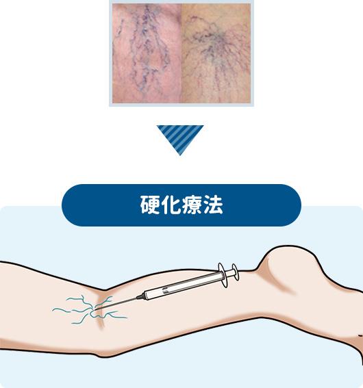 細かい血管に対する硬化療法