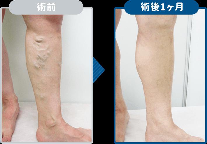下肢静脈瘤レーザー治療術後