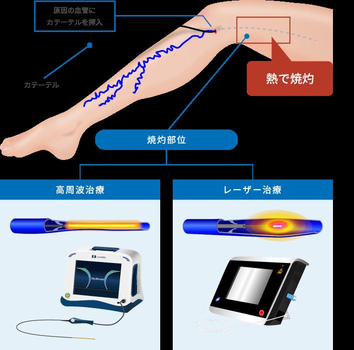 高周波治療とレーザー治療
