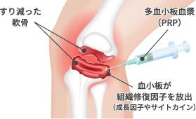 変形性膝関節症 膝サポーターの効果と選び方