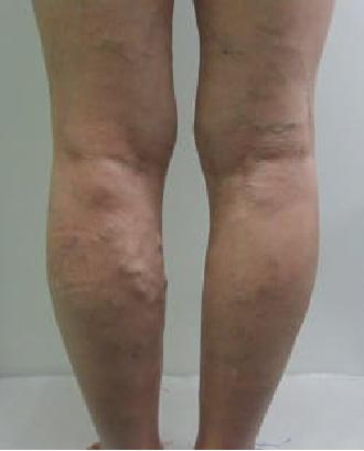 下肢静脈瘤とはそもそもどんな病気?