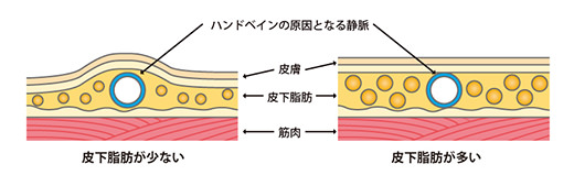 皮下脂肪量の減少