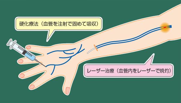 康静会の治療法 硬化療法とレーザー治療の同時施行