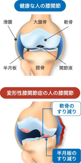 正常な膝関節と変形性膝関節症