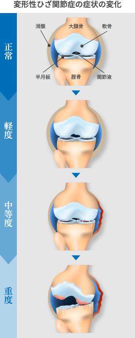 変形性膝関節症の進行