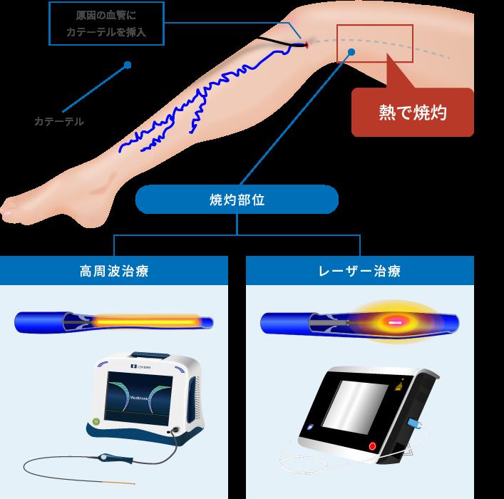 血管内治療(高周波・レーザー)