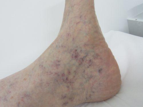 足首・くるぶしの浮き出た血管