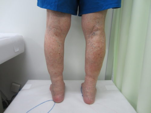 膝のうしろの浮き出た血管