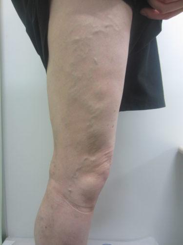 脚の外側の浮き出た血管