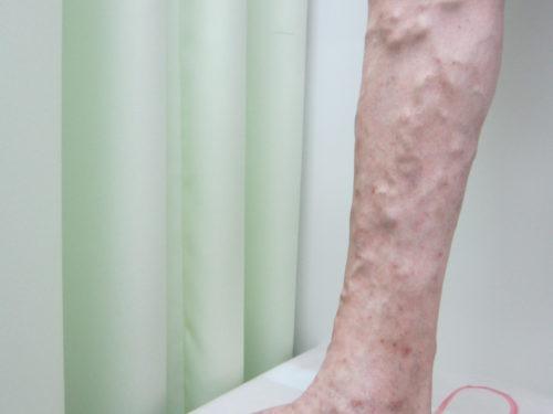 ふくらはぎの浮き出た血管