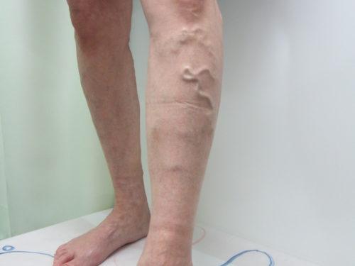 側枝型静脈瘤(そくしがたじょうみゃくりゅう)