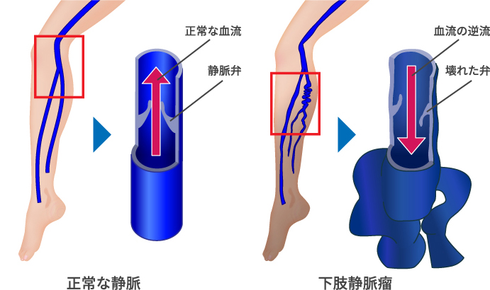 下肢静脈瘤とは?