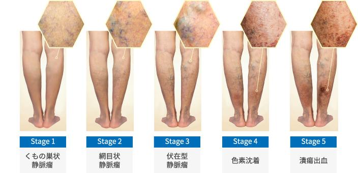 下肢静脈瘤のステージ