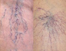 網目状静脈瘤/くもの巣状静脈瘤
