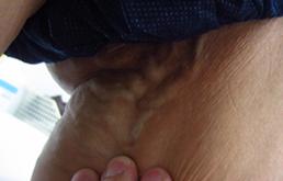 陰部静脈瘤