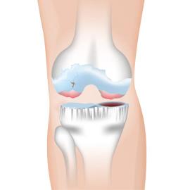膝の傷んだ組織を修復する