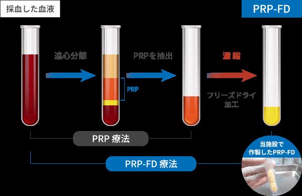 PRP-FD(PFC-FD)療法とPRP療法の違い