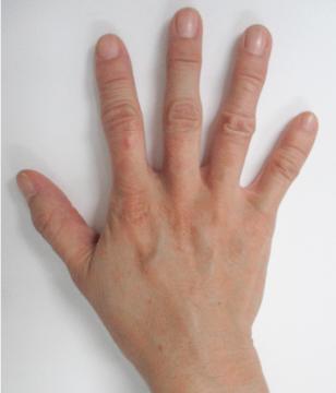 handvein-case1