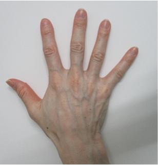 handvein-case5