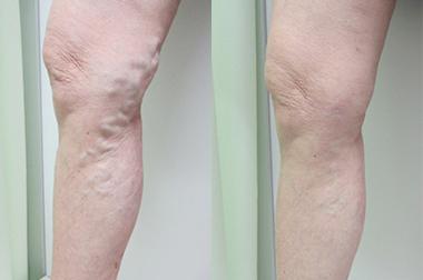 下肢静脈瘤の症例写真