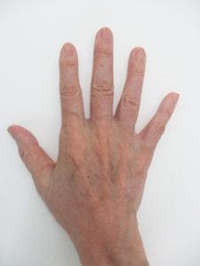 handvein-case17_after