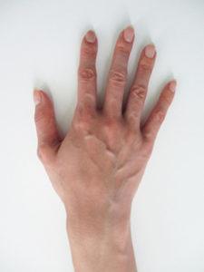 handvein-case19_before