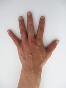 handvein-case20_before