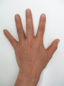 handvein-case20_after
